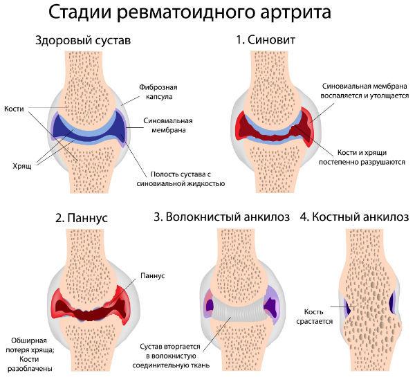 Эффективные народные методы лечения при ревматоидном артрите