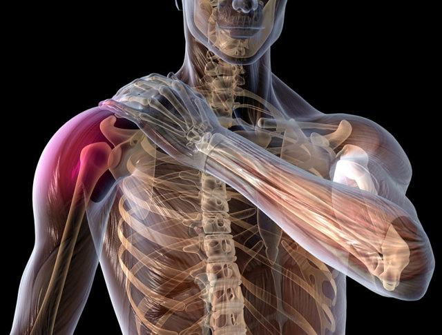 Хруст в плечевом суставе при вращении - причины и лечение