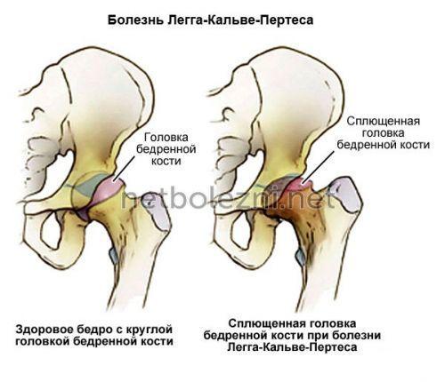 Боль в тазобедренном суставе - что делать и как лечить?
