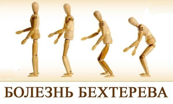 Болезнь Бехтерева - инвалидность какой группы дают