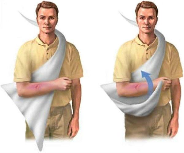 Привычный вывих плеча - оказание первой помощи и методы лечения