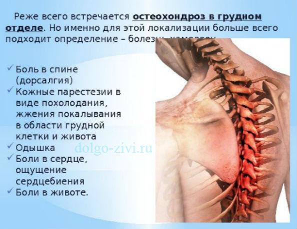 Экстрасистолия при остеохондрозе - что это такое и как лечить