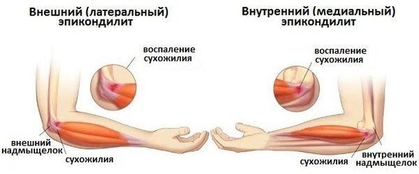 Эпикондилит локтевого сустава - симптомы и лечение