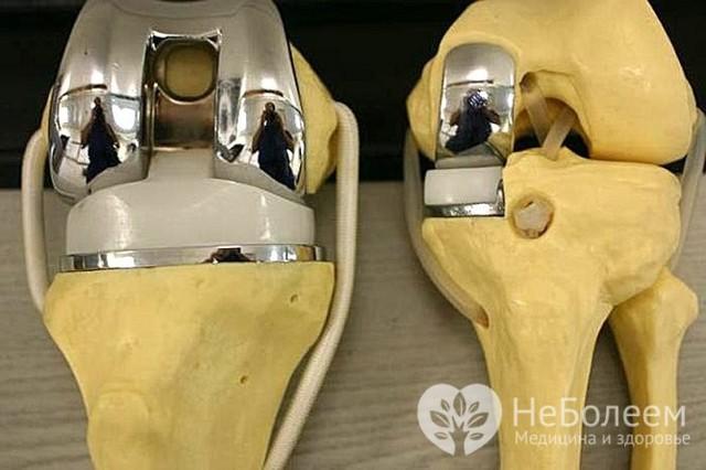 Гонартроз коленного сустава 3 степени - лечение