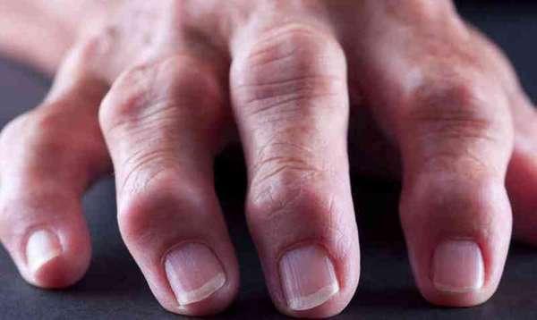 Ревматоидный артроз - что это такое, симптомы и лечение