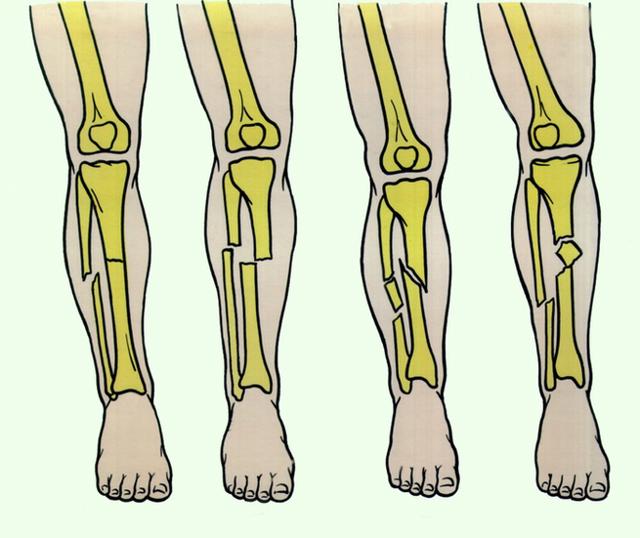 Перелом малой берцовой кости со смещением и без - лечение