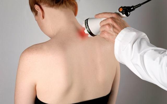 Невралгия шейного отдела позвоночника - симптомы и лечение