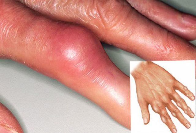 Как лечить подагру на большом пальце ноги и чем?