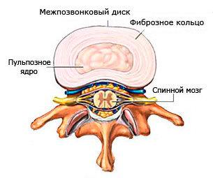 циркулярная протрузия диска позвоночника - что это такое