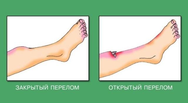 Перелом лодыжки со смещением и без - сколько нужно ходить в гипсе