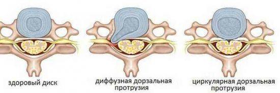 Дорзальная диффузная протрузия диска - что это такое и как лечить