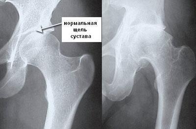 Ювенильный ревматоидный артрит у детей - прогноз на будущее