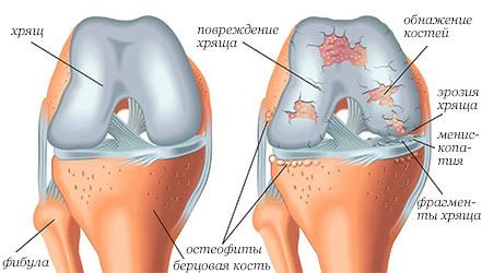 Диета при остеоартрозе суставов у мужчин и женщин