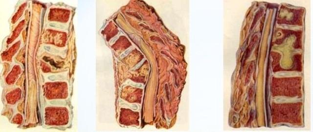 Туберкулез позвоночника - симптомы и лечение