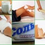 Лечение бурсита народными средствами в домашних условиях