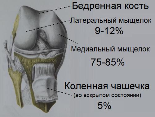 Болезнь Кенига коленного сустава - что это такое и как лечить