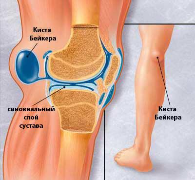 Болит коленный сустав при ходьбе и сгибании - почему и чем лечить