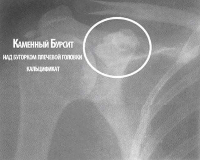 Бурсит плечевого сустава - что это такое? Симптомы и лечение