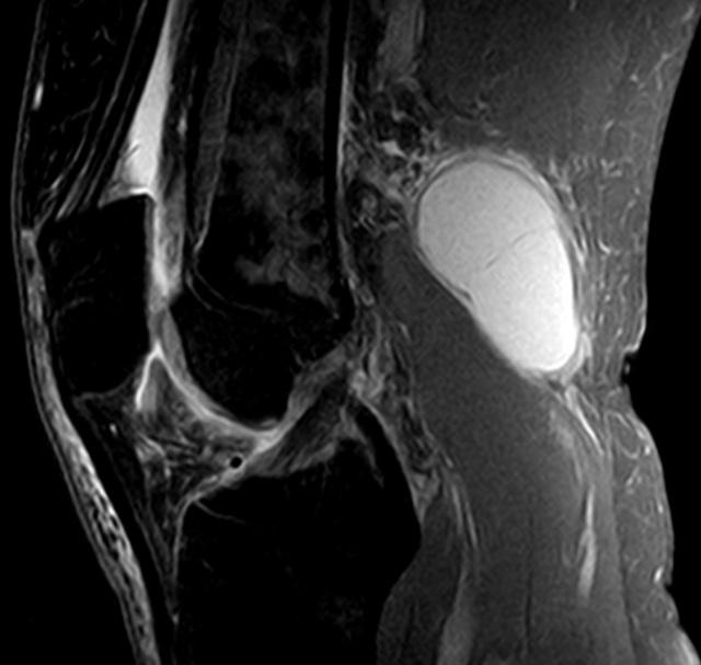 Киста Бейкера коленного сустава - что это такое?