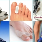 Артроз большого пальца ноги - лечение и симптомы