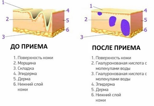 ГИАЛУРОНОВАЯ КИСЛОТА - инструкция по применению, отзывы
