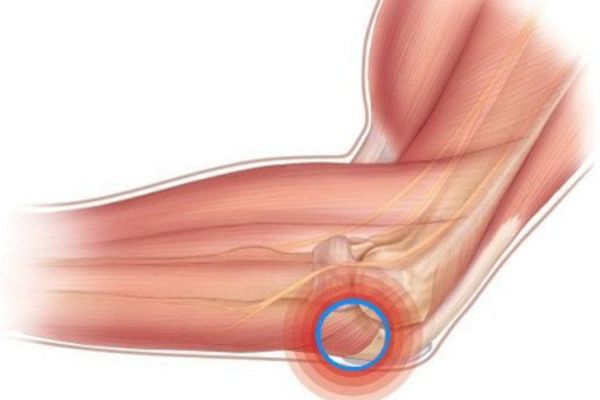 Артрит локтевого сустава - симптомы и лечение