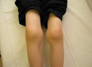 Артрит коленного сустава у детей - причины, симптомы и лечение