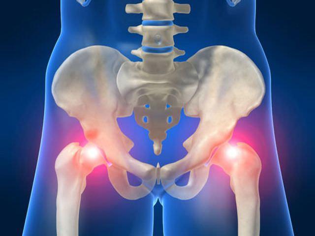 Массаж при коксартрозе тазобедренного сустава