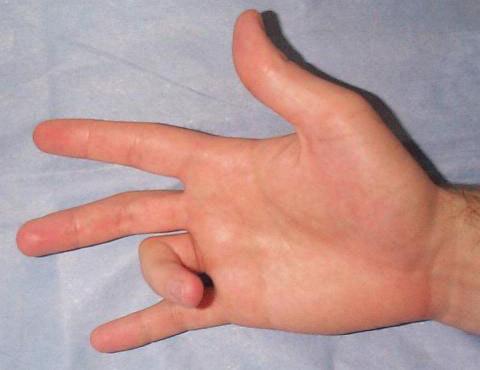 Стенозирующий лигаментит - симптомы и лечение