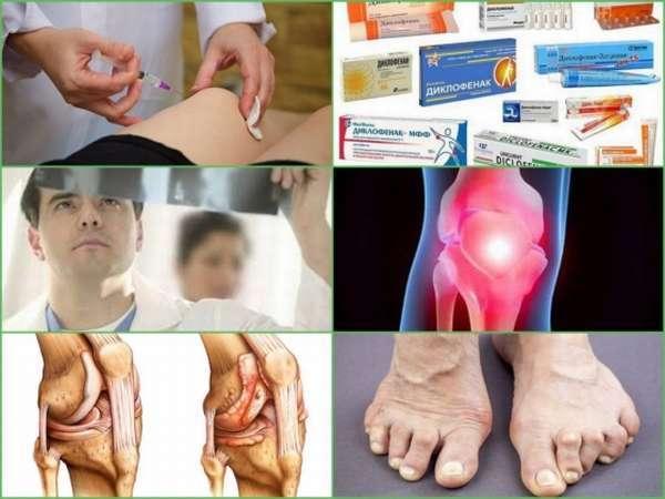 Лечение ревматоидного артрита - препараты нового поколения