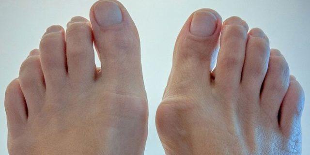 Артроз плюснефалангового сустава 1 пальца стопы - лечение