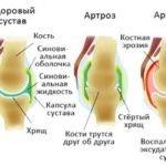 Болят колени - народные средства лечения самые эффективные