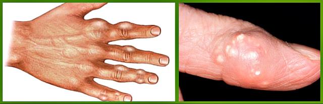 Подагра - признаки и лечение, что это такое за заболевание
