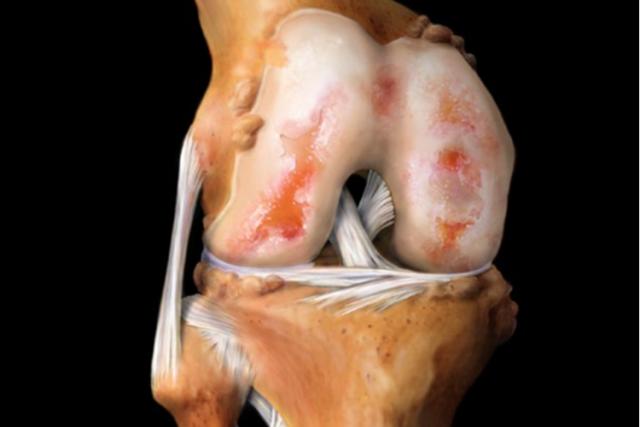 Упражнения при артрите коленного сустава - лечебный комплекс