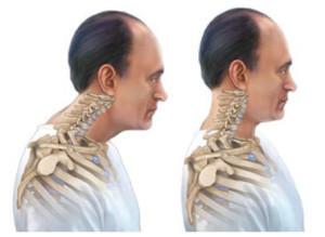 Горчичники при остеохондрозе поясничного отдела можно ли ставить