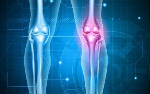 Остеопороз коленного сустава - симптомы, признаки и лечение