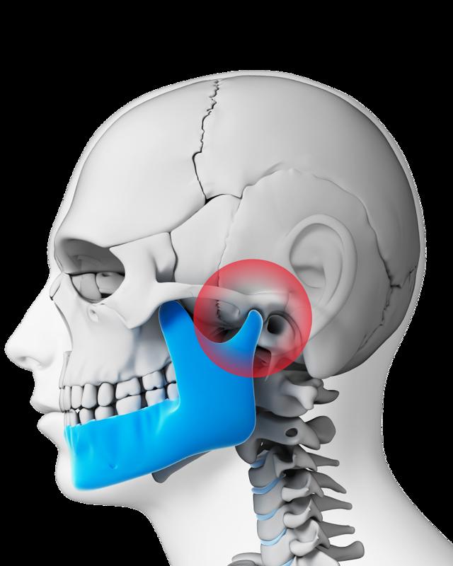 Анкилоз ВНЧС - что это такое, симптомы и лечение
