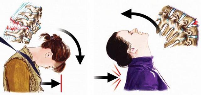 Перелом остистого отростка шейного позвонка - лечение, последствия