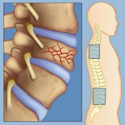 Дорсопатия грудного отдела позвоночника - что это такое и как лечить