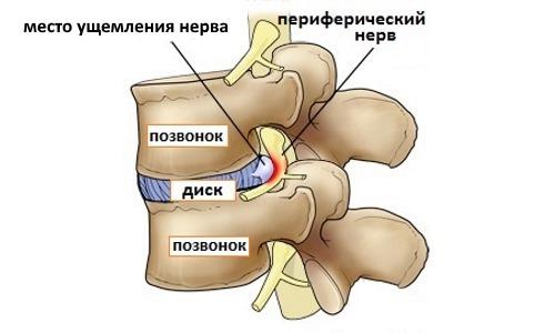 Невралгия спины у взрослых людей - симптомы и лечение