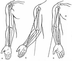 Контрактура локтевого сустава после перелома - лечение