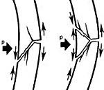 Оскольчатый перелом бедра - что это значит и как лечится