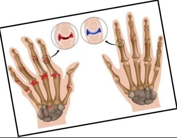 Остеоартроз кистей рук - лечение, диагностика и симптомы