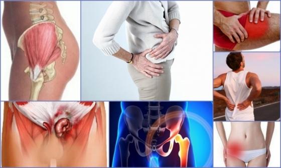 Тендиноз тазобедренного сустава - что это такое, симптомы и лечение