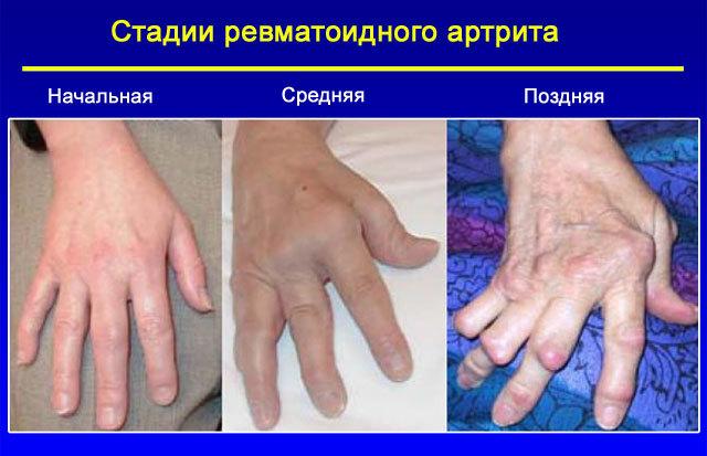 Инвалидность при ревматоидном артрите - положена или нет