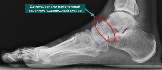 Боль в голеностопном суставе при ходьбе - причины и лечение