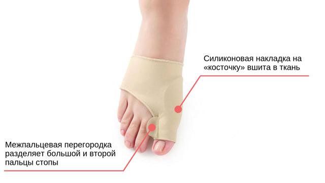 Ортопедический фиксатор для косточки на ноге - обзор и выбор лучшего!