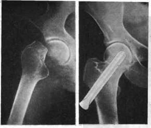 Консолидированный перелом - что это такое? Описание