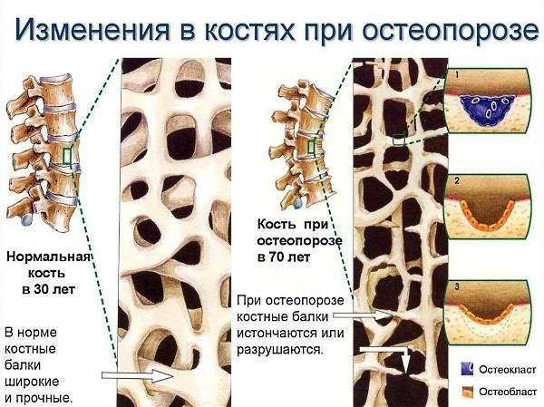 Диагностика остеопороза у женщин и мужчин - комплекс мероприятий