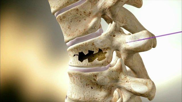 Компрессионный перелом позвоночника поясничного отдела - лечение